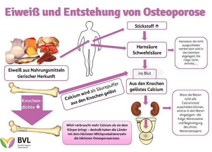 Osteoporose Durch Milch